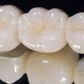 Puente-dental-fijo-porcelana-Medellin