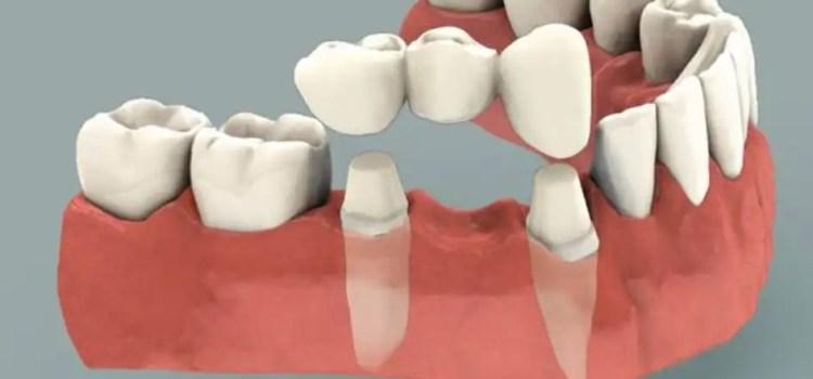 Puente dental fijo porcelana Medellin