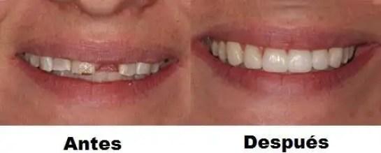 Puente dental económico antes después