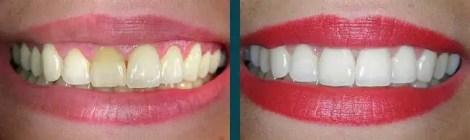 Carillas dentales en porcelana antes y después 2