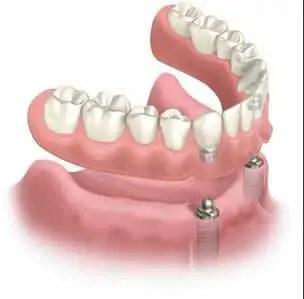 Prótesis dental sobre implante sobre dentadura