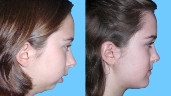 Crecimiento facial niños Odontopediatria Medellin