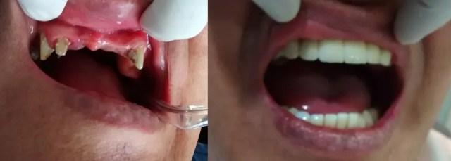 Puente dental antes después Medellin Colombia