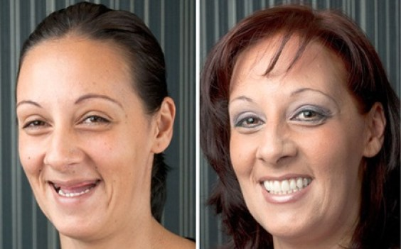 Rejuvenecimiento facial Prótesis sobre implantes antes después Medellin Colombia