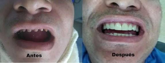 Coronas dentales porcelana antes después Medellin Colombia