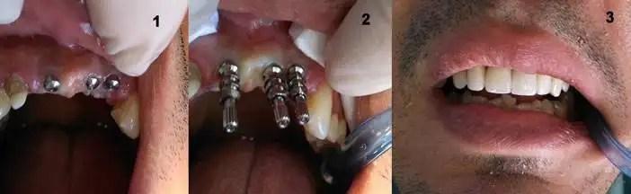 Implantes Dentales antes después Medellín Colombia