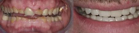 reconstrucción dental total Medellín