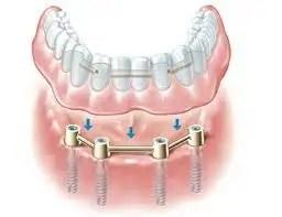 Prótesis sobre implantes tipos