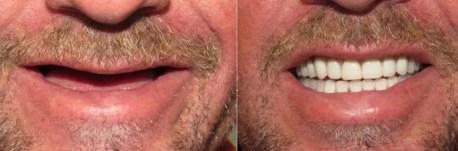 Implantes dentales antes- despues Medellin Colombia