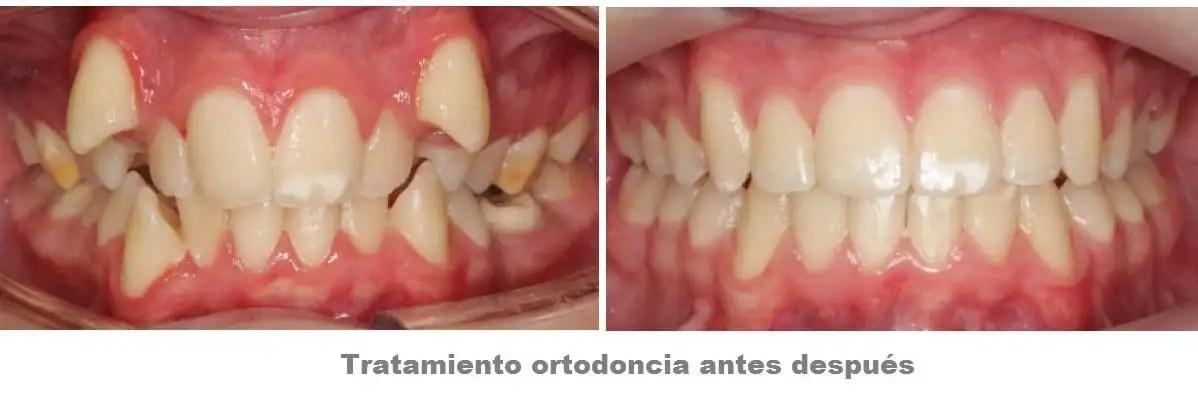 ortodoncia medellin poblado