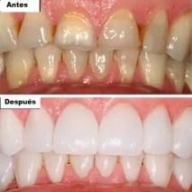 Cosmetic dentist medellin