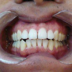 Aeropulido dental DESPUÉS