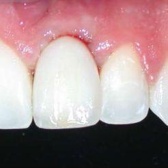 Implante dental DESPUÉS