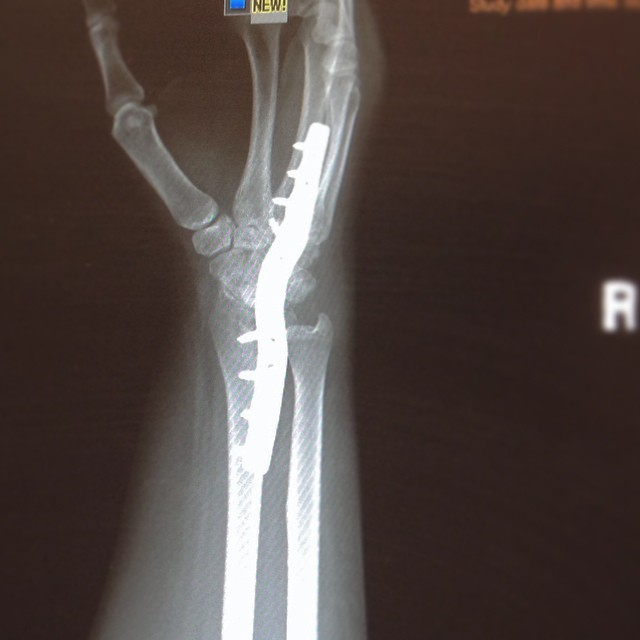 Avascular Osteonecrosis surgery