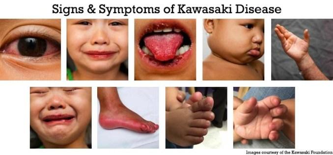 covid 19 and kawasaki disease, signs and symptoms