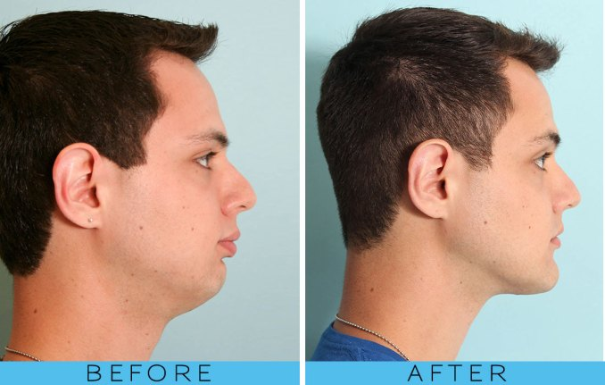 orthognathic surgery, jaw surgery before after overbite