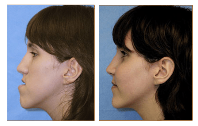 Jaw Surgery - pictures, diet, risks & swelling - Offline Clinic