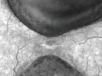 angiografrafia-hra-4