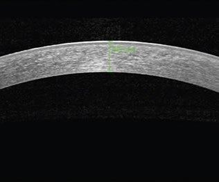 spectralis-segmentoanterior-2