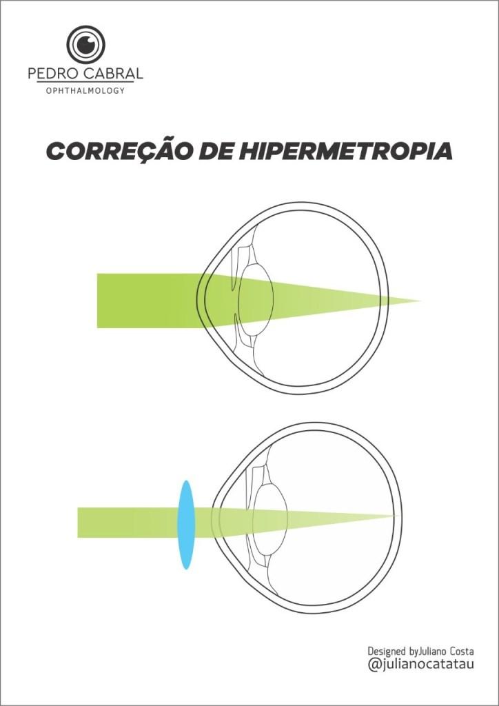 Correção Hipermetropia
