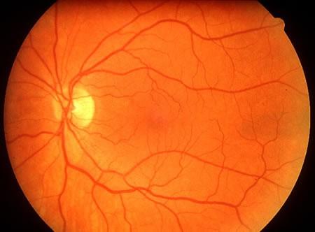 Fundo de olho com retina normal