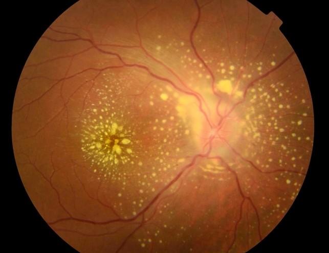 Uveíte posterior (exame da parte posterior do olho)