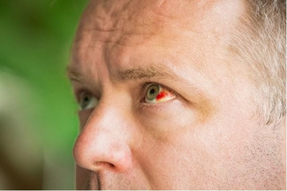 "Quadro de hemorragia subconjuntival, chamado popularmente de ""derrame ocular"""