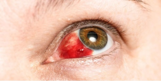 Derrame ocular, hemorragia subconjuntival ou hiposfagma