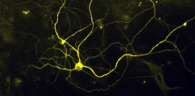 nociceptorweb