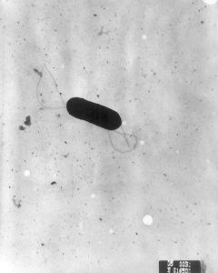 800px-Listeria_monocytogenes_PHIL_2287_lores