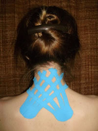 Kinesio Taping on Upper Back & Neck