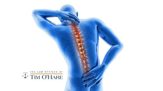 What You Need to Know About Spinal Cord Injury Claims in Texas