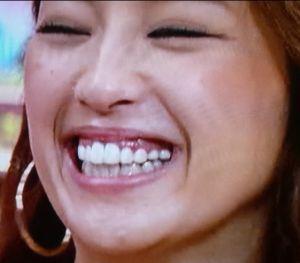 中村アンの歯