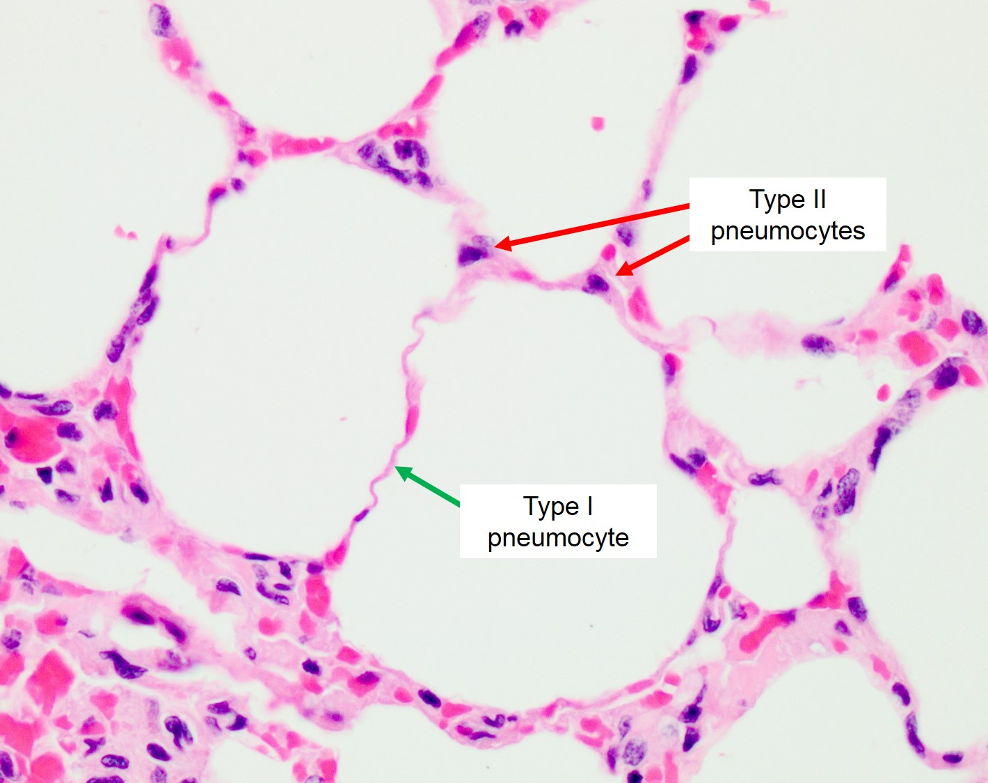 Ii Alveolar Type Histology Cell