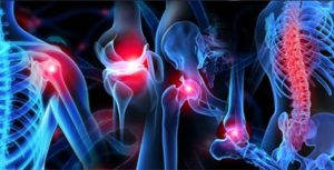 musculoskeletal injuries Ohio Therapy Centers