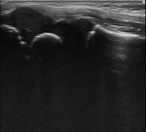 肘関節外側_超音波画像