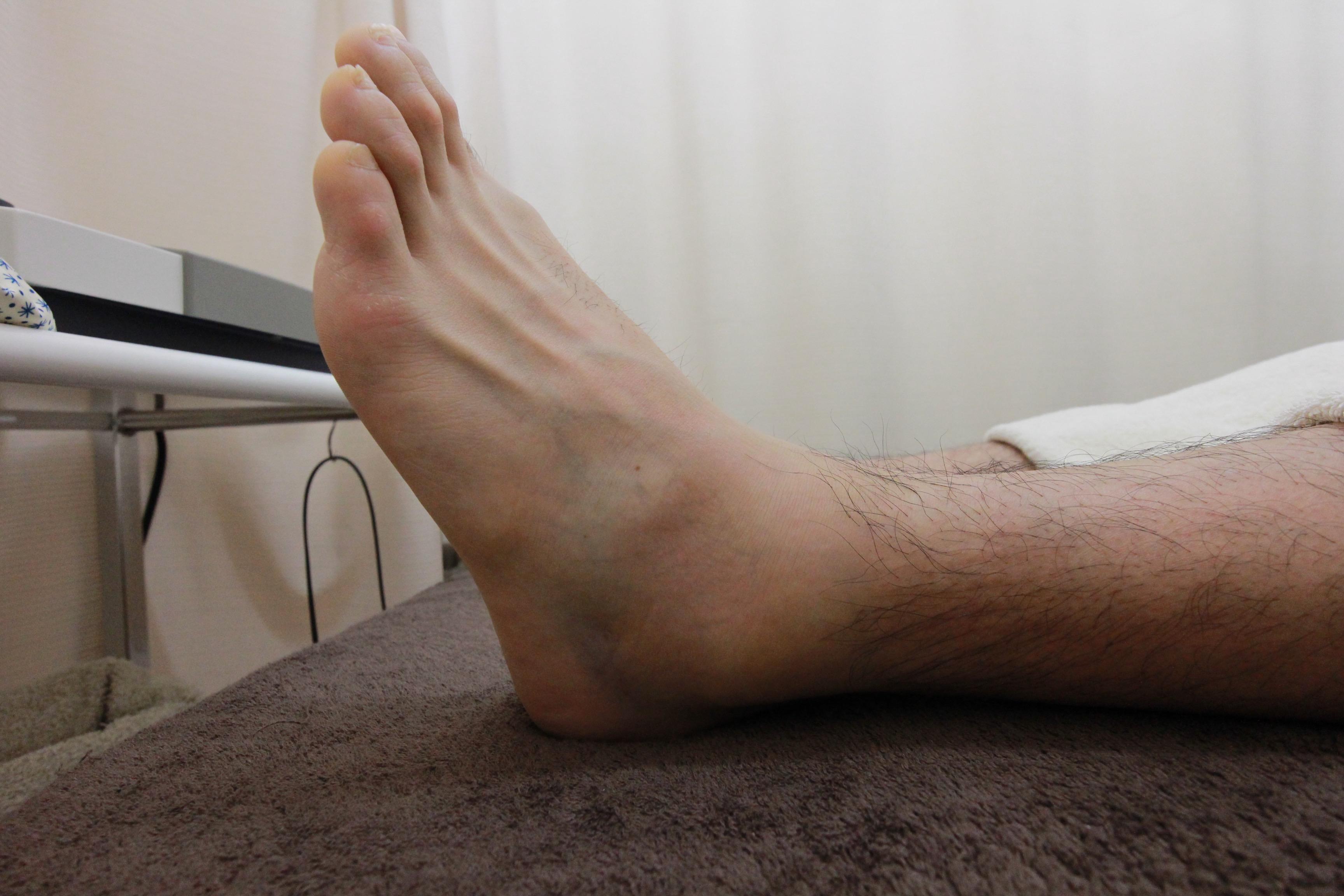 ボルダリング中の左足首捻挫