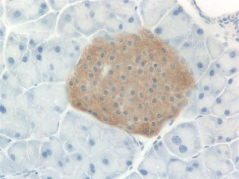 Islet of Langerhans, stained for insulin