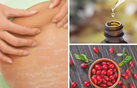 Rosehip oil for stretch Marks