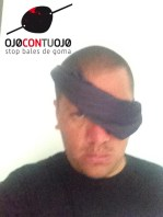 Perro de Los Kalakos se une a la campaña Ojocontuojo