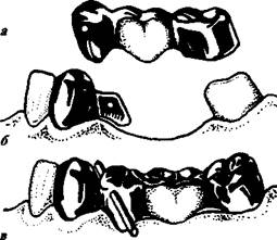 Мостовидные протезы виды описание и особенности