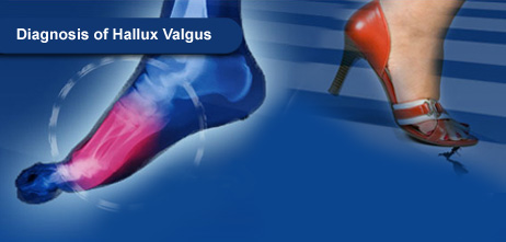 Diagnosis of Hallux Valgus. Pressure Mapping Systems.