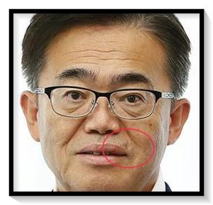 大村秀章知事の顔の傷