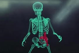 Now they want to scan your bones