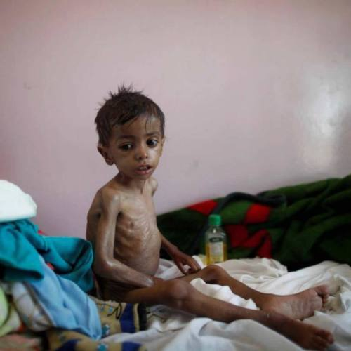 R3publicans:  Why 55 U.S. Senators Voted for Genocide in Yemen