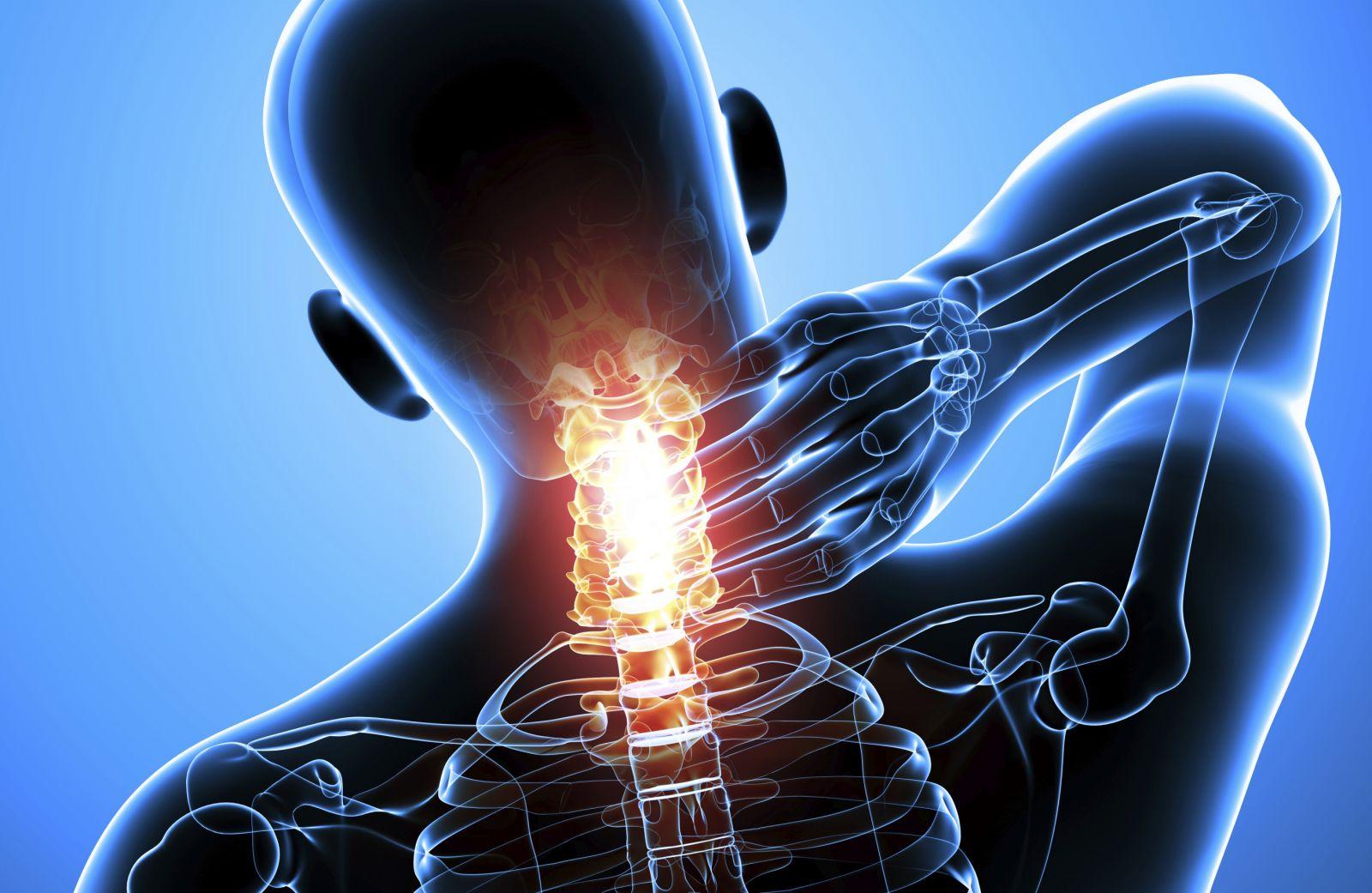 Скрип в шее при повороте головы лечение. Хруст и сопутствующие симптомы. Симптоматические проявления хруста в шеи