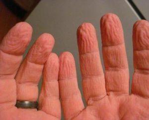 b2 3 300x241 - Banyodan Sonra Ellerimiz Niçin Buruşur?