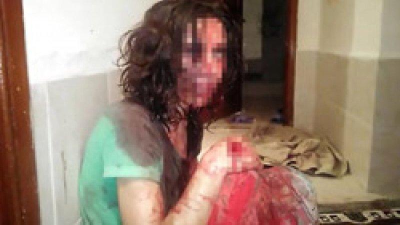Antalya'da eşinden ölümcül şiddet gören kadının komşuları: Bu ilk değil