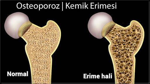 Kemik erimesi (osteoporoz), OkuGit.Com - Tarih, Güncel, Kadın, Sağlık, Moda Bilgileri Genel Bloğu