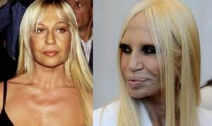 Donatella Versace 300x178 - Ünlülerin Genç ve Yaşlı Halleri